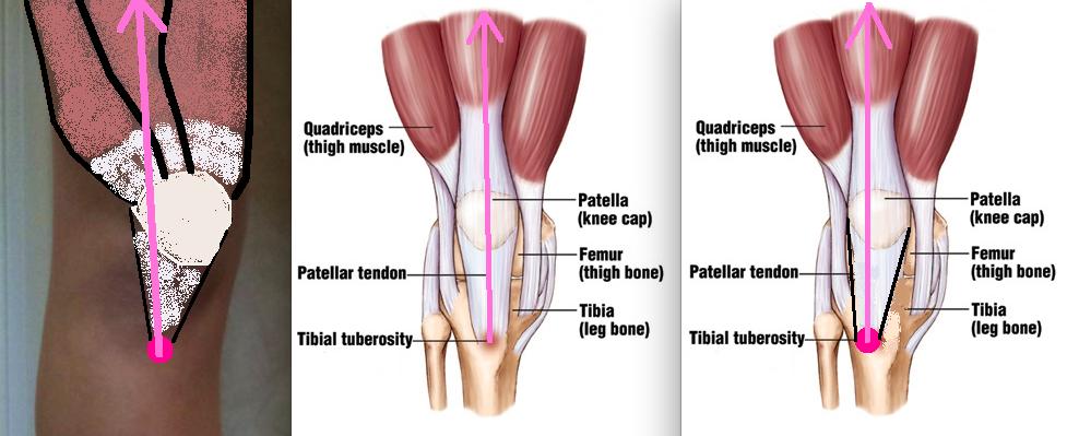 Femoral Anteversion Tibial Tuberosity Patellar Tracking